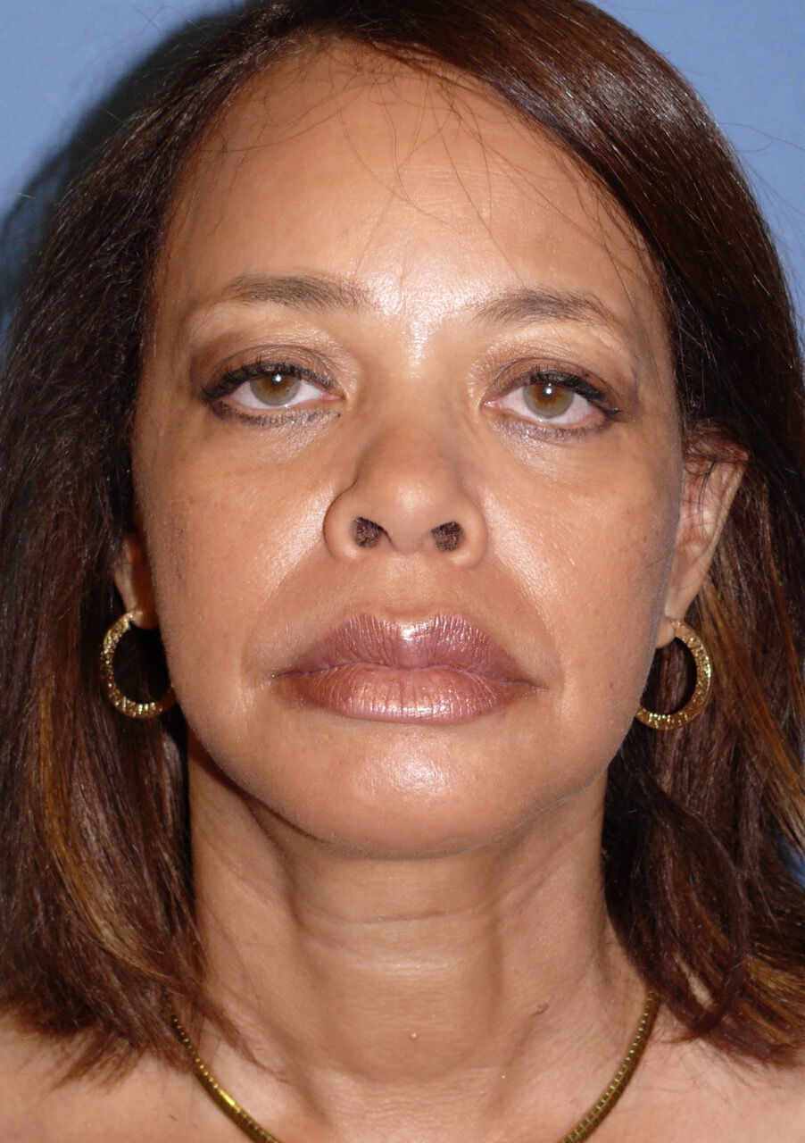Buccal Fat Removal Before & After Image
