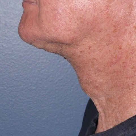Direct Neck Lift Before & After Image