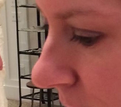Liquid Rhinoplasty Before & After Image