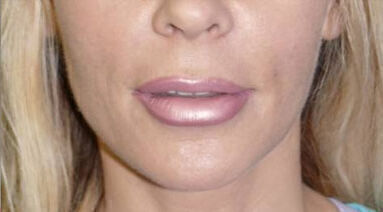 Non Invasive Before & After Image